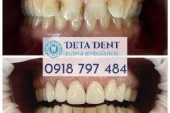 zubna-premena1