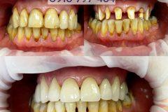 zubna-premena2