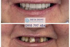 zubna-premena3